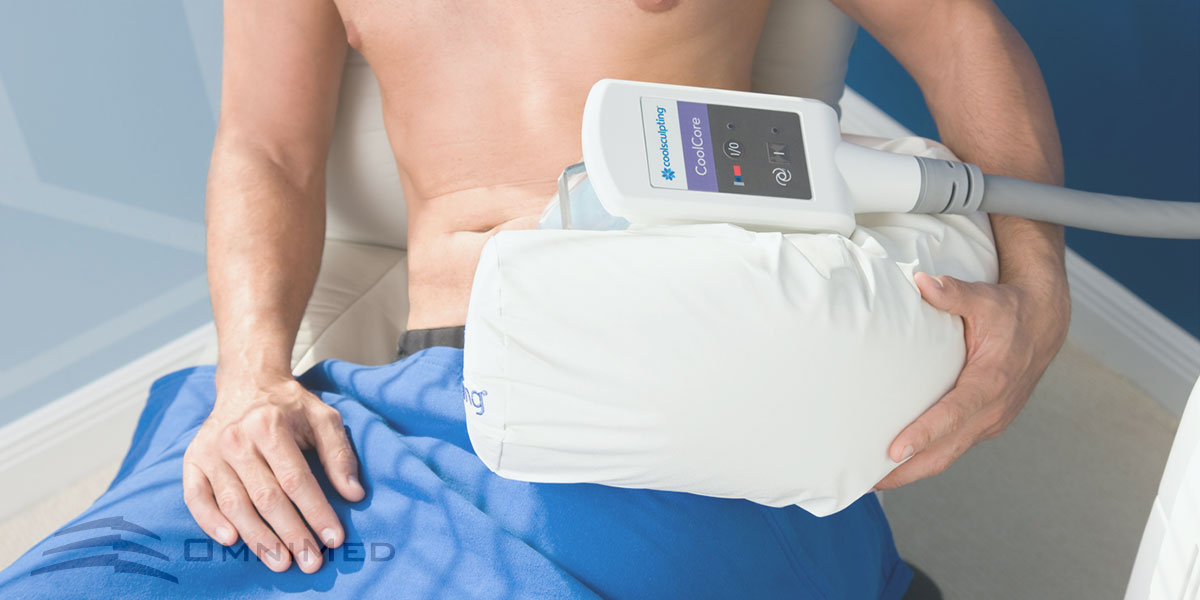 CoolSculpting® bei OmniMed: Fettreduktion durch Kälte