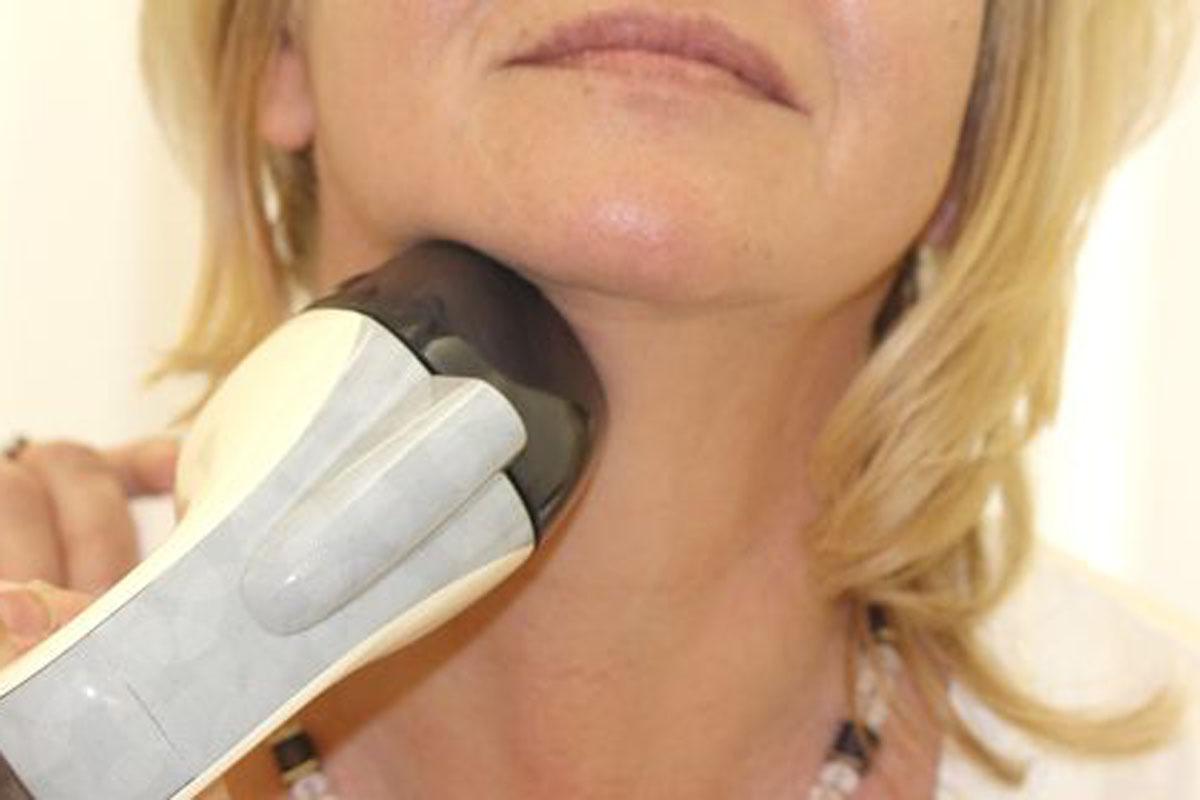 Doppelkinn entfernen mit VelaShape® III bei Dr. Wallentin in Wien