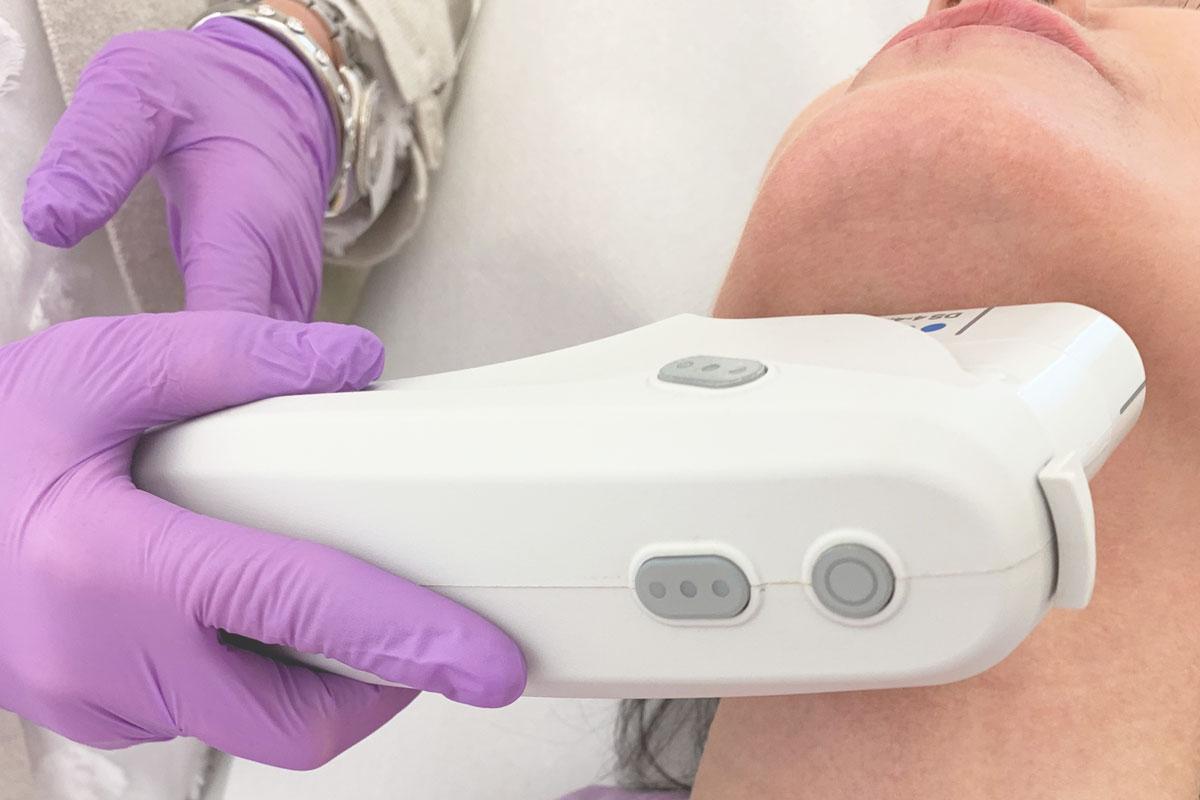 Doppelkinn entfernen mit Ultherapy® bei Dr. Wallentin in Wien